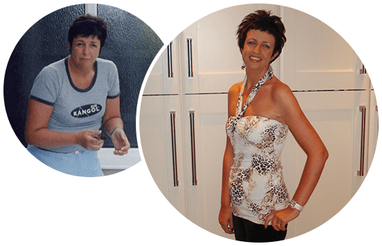 Zotrim-success-stories-before-after-sharon